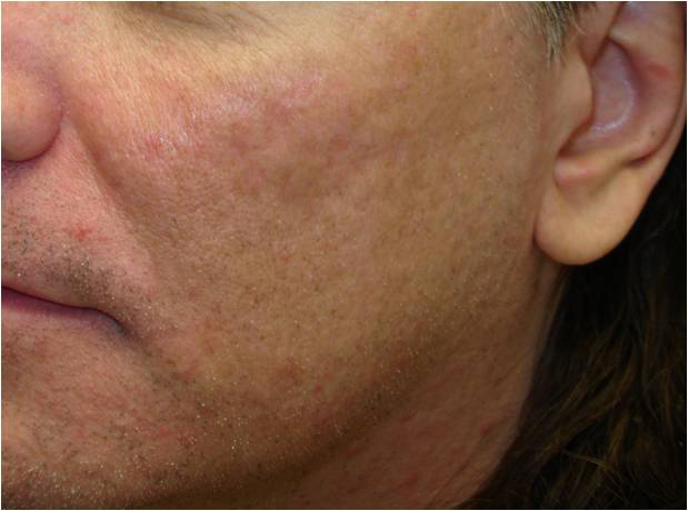 Ablative Laser For Acne Scars